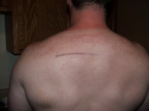 My big ugly back with a purple line on it.